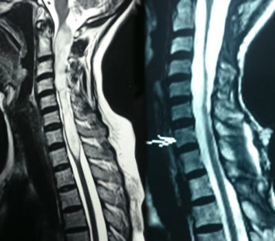 Intramedullary-spine-tumour
