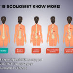 What is Scoliosis? Know More
