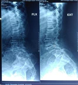 Scan Report Of Spinal Deformity