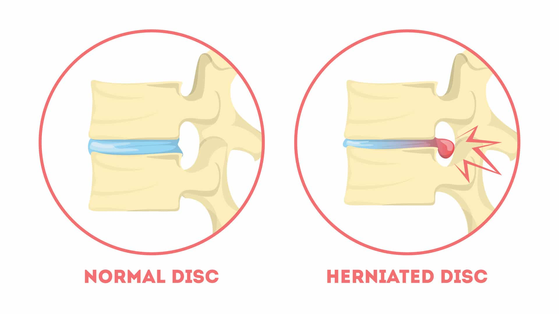 Diagrammatic Explanation of normal and herinated disc as pointed by Dr.G.Balamurali, a spinal neurosurgeon in India
