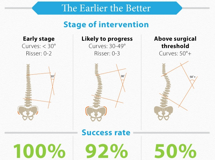 Stages of intervention as mentioned by Dr.G.Balamurali, best neurosurgeon in India